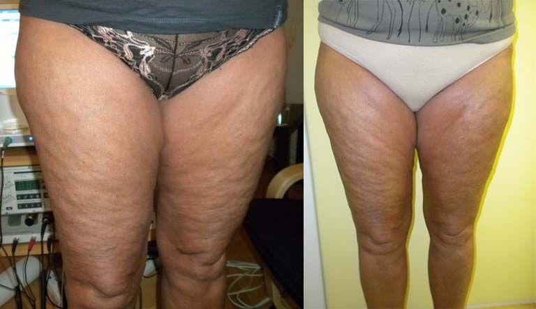 Cellulite Grad 3 Vorher Nachher Bilder