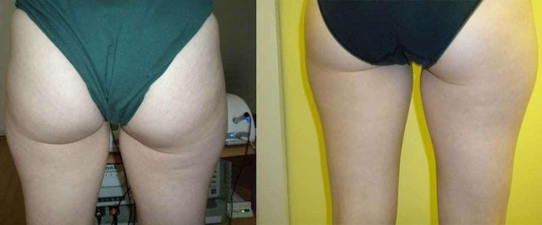 Cellulite Grad 1 Vorher Nachher Bilder